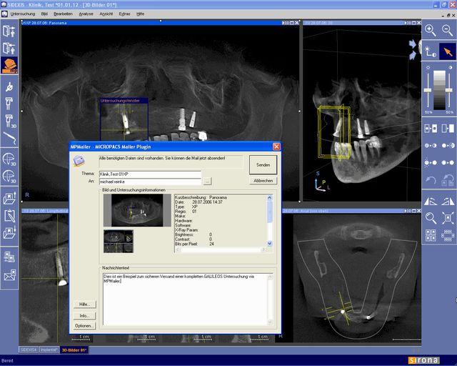 Integration des MPMailer DirectDental Plugins in die SIRONA SIDEXIS Anwendung. Mit dem MPMailer Plugin können auch 3D GALILEOS Untersuchungsdaten in einer sicheren Teleradiologieumgebung übertragen und kommuniziert werden. Ein MICROPACS Produkt.